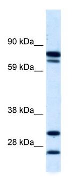 Western blot - ZNF606 antibody (ab42481)