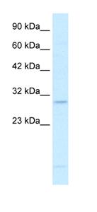 Western blot - RALY antibody (ab42498)