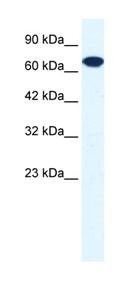 Western blot - ZNF179 antibody (ab42499)