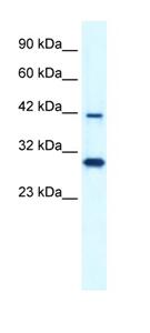 Western blot - PREB antibody (ab42501)