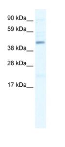 Western blot - SMARCB1 antibody (ab42503)