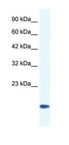 Western blot - CSRP3 antibody (ab42504)