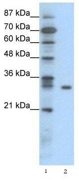 Western blot - IKB beta antibody (ab42507)