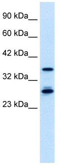 Western blot - MTF2 antibody (ab42508)