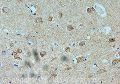 Immunohistochemistry (Formalin/PFA-fixed paraffin-embedded sections) - Dact1 / Dapper homolog 1 antibody (ab42547)