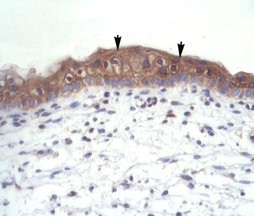 Immunohistochemistry (Formalin/PFA-fixed paraffin-embedded sections) - Thyroid Hormone Receptor alpha 1+2 antibody (ab42565)