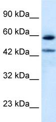 Western blot - Thyroid Hormone Receptor alpha 1+2 antibody (ab42565)