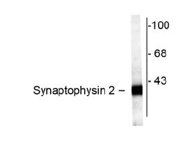 Western blot - SYNPR antibody (ab42938)