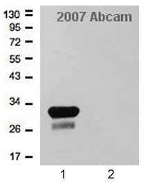 Western blot - Mycobacterium tuberculosis Ag85B antibody (ab43019)