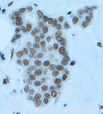 Immunohistochemistry (Formalin/PFA-fixed paraffin-embedded sections) - YY1 antibody (ab43058)