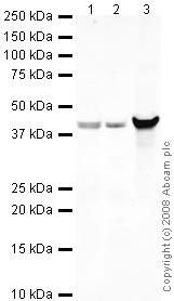 Western blot - beta Dystroglycan antibody (ab43125)