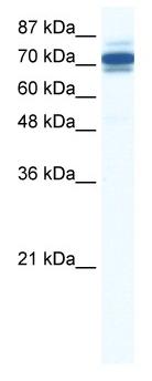 Western blot - ZNF690 antibody (ab43134)