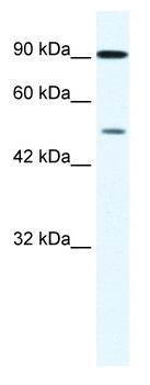 Western blot - ZNF175 antibody (ab43140)