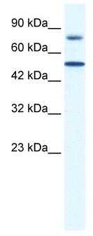 Western blot - ZNF223 antibody (ab43149)