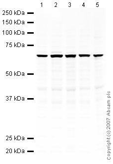 Western blot - SGK1 antibody (ab43606)