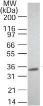 Western blot - RANKL antibody [12A668] (ab45039)