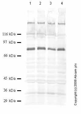 Western blot - ADAMTS16 antibody - Propeptide domain (ab45048)