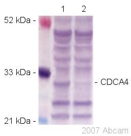 Western blot - CDCA4 antibody (ab45645)