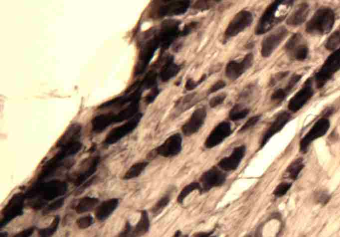 Immunohistochemistry (Frozen sections) - beta Amyloid antibody (ab45758)