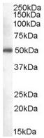 Western blot - DDX6 antibody (ab45869)