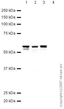 Western blot - Vimentin antibody - Neural Stem Cell Marker (ab45939)