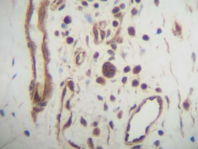 Immunohistochemistry (Formalin/PFA-fixed paraffin-embedded sections) - Cxcl14/BRAK antibody (ab46010)