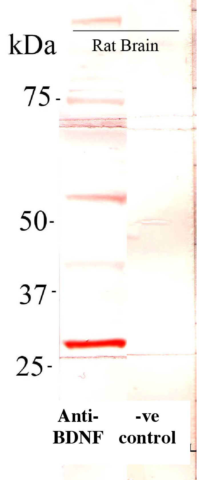 Western blot - Anti-BDNF antibody (ab46176)