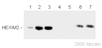 Western blot - HEXIM2 antibody (ab46528)