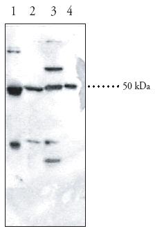 Western blot - SPHK1 antibody (ab46719)