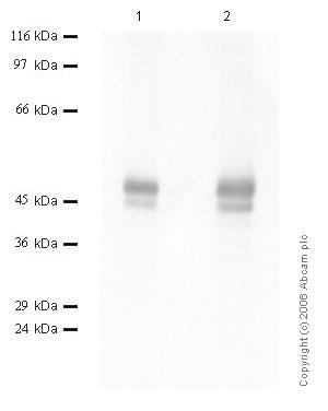Western blot - Neuroserpin antibody - Mid molecule (ab46773)
