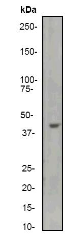 Western blot - muscle Actin antibody [EP184E] (ab46805)