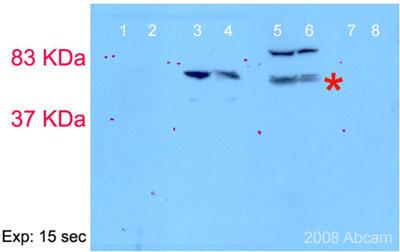 Western blot - Scc4 antibody (ab46906)