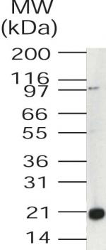 Western blot - UEV1 (170 aa isoform a) antibody (ab46949)