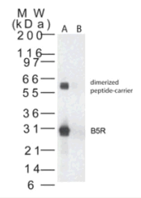 Western blot - Smallpox B5R antibody (ab47041)