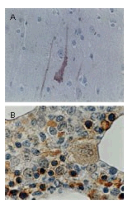Immunohistochemistry (Formalin/PFA-fixed paraffin-embedded sections) - Anti-Bcl-XL antibody (ab47123)