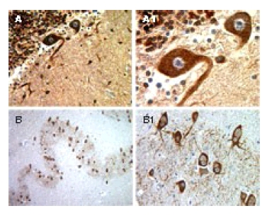 Immunohistochemistry (Formalin/PFA-fixed paraffin-embedded sections) - BFAR antibody (ab47127)