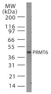 Western blot - PRMT6 antibody (ab47244)