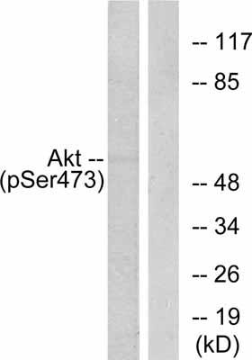 Western blot - AKT1 (phospho S473) antibody (ab47261)