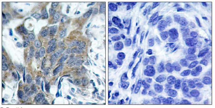 Immunohistochemistry (Paraffin-embedded sections) - beta Catenin (phospho S33) antibody (ab47266)