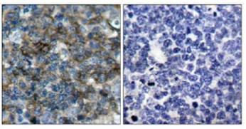 Immunohistochemistry (Paraffin-embedded sections) - VASP (phospho S157) antibody (ab47268)