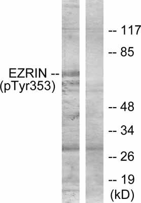 Western blot - Ezrin (phospho Y353) antibody (ab47273)