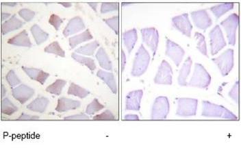 Immunohistochemistry (Paraffin-embedded sections) - MKK4 (phospho T261) antibody (ab47277)