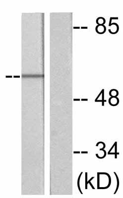 Western blot - Cdc25A (phospho S75) antibody (ab47279)