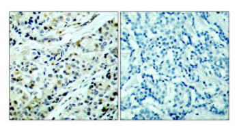 Immunohistochemistry (Formalin/PFA-fixed paraffin-embedded sections) - HDAC5 (phospho S498) antibody (ab47283)