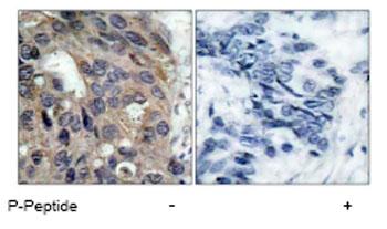 Immunohistochemistry (Paraffin-embedded sections) - Src (phospho Y529) antibody (ab47284)