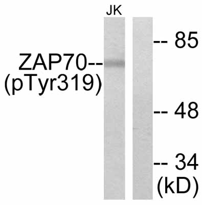 Western blot - ZAP70 (phospho Y319) antibody (ab47289)