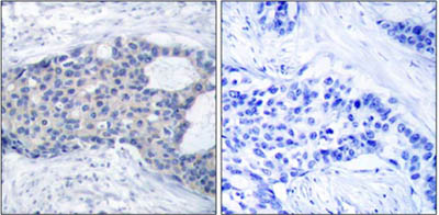 Immunohistochemistry (Formalin/PFA-fixed paraffin-embedded sections) - ZAP70 (phospho Y493) antibody (ab47290)