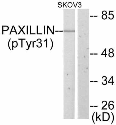 Western blot - Paxillin (phospho Y31) antibody (ab47292)