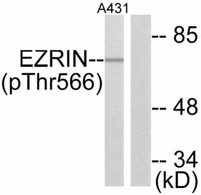 Western blot - Ezrin (phospho Y566) antibody (ab47293)