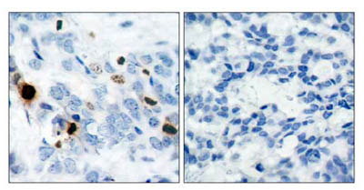 Immunohistochemistry (Paraffin-embedded sections) - Histone H3 (phospho S10) antibody (ab47297)